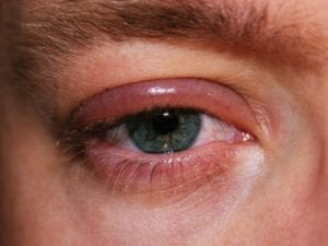 castor oil for blepharitis